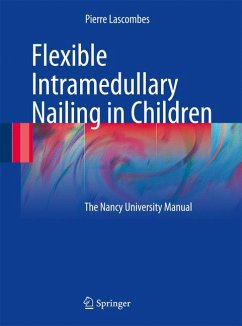 Flexible Intramedullary Nailing in Children (eBook, PDF) - Lascombes, Pierre