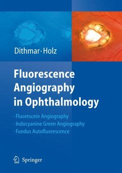Fluorescence Angiography in Ophthalmology (eBook, PDF) - Holz, Frank G.; Dithmar, Stefan