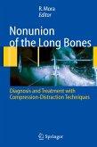 Nonunion of the Long Bones (eBook, PDF)