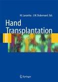 Hand transplantation (eBook, PDF)