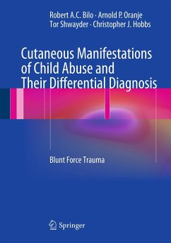 Cutaneous Manifestations of Child Abuse and Their Differential Diagnosis (eBook, PDF) - Oranje, Arnold P.; Bilo, Robert A. C.; Shwayder, Tor; Hobbs, Christopher J.