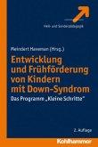 Entwicklung und Frühförderung von Kindern mit Down-Syndrom