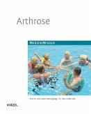 Arthrose (eBook, PDF)