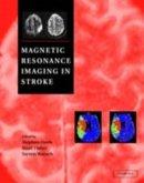 Magnetic Resonance Imaging in Stroke (eBook, PDF)