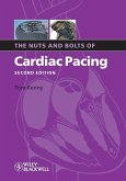 The Nuts and Bolts of Cardiac Pacing (eBook, PDF)