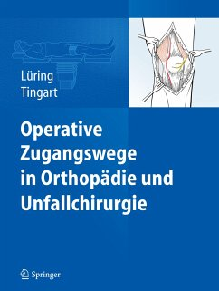 Operative Zugangswege in Orthopädie und Unfallc...