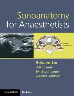 Sonoanatomy for Anaesthetists (eBook, PDF) - Lin, Edward