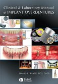 Clinical and Laboratory Manual of Implant Overdentures (eBook, ePUB)