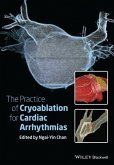 The Practice of Catheter Cryoablation for Cardiac Arrhythmias