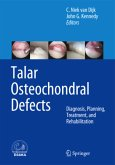 Talar Osteochondral Defects