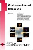 Contrast-enhanced ultrasound