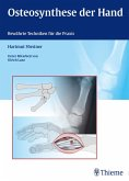 Osteosynthese der Hand (eBook, ePUB)