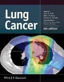 Lung Cancer (eBook, ePUB)