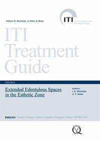 Extended Edentulous Spaces in the Esthetic Zone