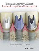 Clinical and Laboratory Manual of Dental Implant Abutments (eBook, PDF)