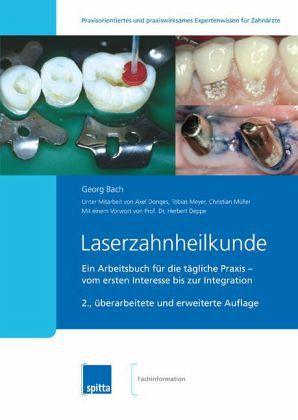 Laserzahnheilkunde - Bach, Georg