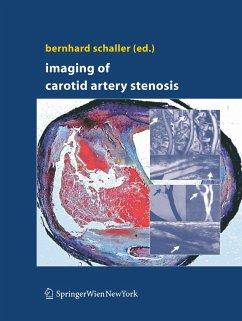Imaging of Carotid Artery Stenosis