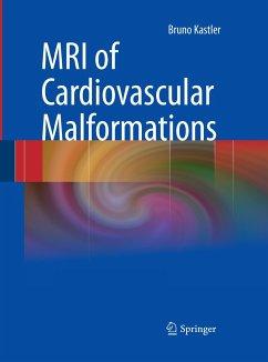 MRI of Cardiovascular Malformations - Kastler, Bruno