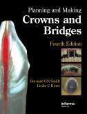 Planning and Making Crowns and Bridges (eBook, PDF)