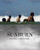 Daniel Tchetchik: SunBurn