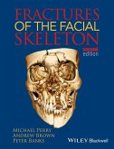 Fractures of the Facial Skeleton (eBook, ePUB)