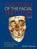 Fractures of the Facial Skeleton (eBook, PDF)