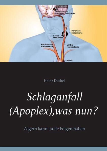Schlaganfall (Apoplex), was nun? - Duthel, Heinz