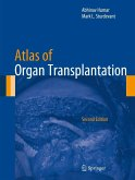 Atlas of Organ Transplantation (eBook, PDF)