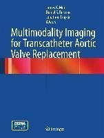 Multimodality Imaging for Transcatheter Aortic Valve Replacement (eBook, PDF)