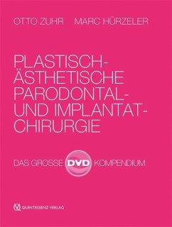 Plastisch-Ästhetische Parodontal- und Implantatchirurgie, 4 DVD-Video