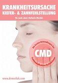 Krankheitsursache Kiefer- & Zahnfehlstellung (eBook, ePUB)