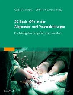 20 Basis-OPs in der Allgemein- und Viszeralchirurgie