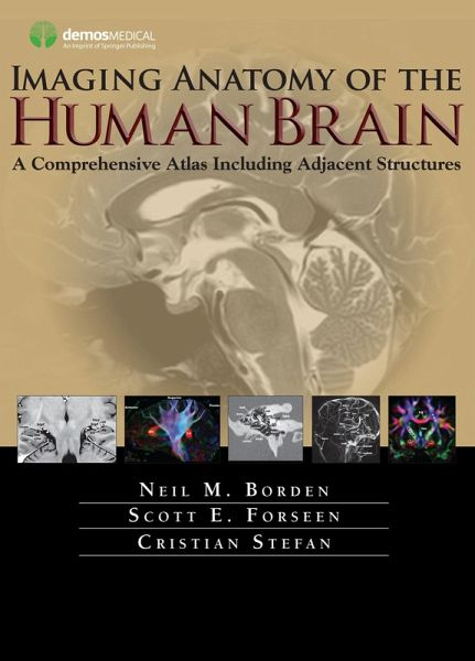 Imaging anatomy of the human brain ebook pdf von neil m borden imaging anatomy of the human brain ebook pdf borden neil m fandeluxe PDF
