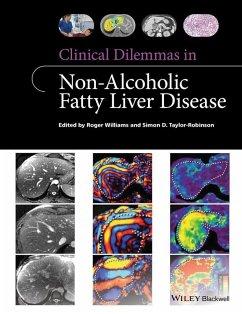 Clinical Dilemmas in Non-Alcoholic Fatty Liver Disease (eBook, ePUB) - Williams, Roger; Taylor-Robinson, Simon D.