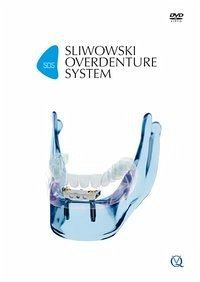 SOS - Sliwowski Overdenture System