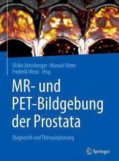 MR- und PET-Bildgebung der Prostata