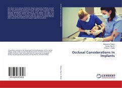 Occlusal Considerations In Implants