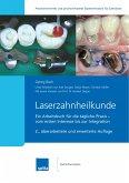 Laserzahnheilkunde (eBook, ePUB)