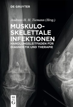 Muskuloskelettale Infektionen (eBook, PDF)