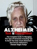 Alzheimers Test And Prevention: The Complete Guide To Managing This Type Of Dementia Including Tips To Avoid The Early Onset Alzheimer's And Chronic Alzheimer's Disease Stages Today! (eBook, ePUB)