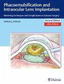Phacoemulsification and Intraocular Lens Implantation