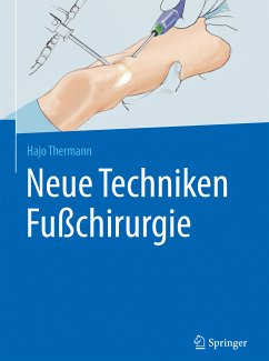 Neue Techniken Fußchirurgie (eBook, PDF) - Thermann, Hajo