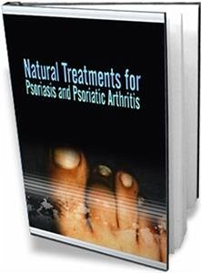Natural treatments for psoriasis and psoriatic arthritis (eBook, PDF) - Collectif, Ouvrage