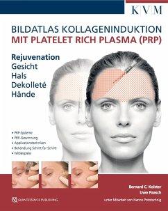 Bildatlas Kollageninduktion mit Platelet Rich Plasma (PRP) - Kolster, Bernard C.; Paasch, Uwe