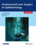 Femtosecond Laser Surgery in Ophthalmology (eBook, ePUB)