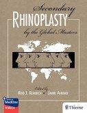 Secondary Rhinoplasty by the Global Masters (eBook, ePUB)