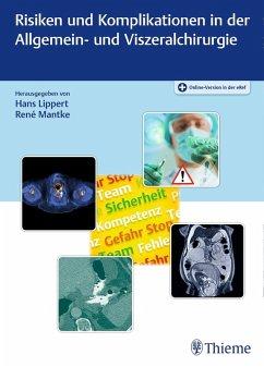 Risiken und Komplikationen in der Allgemein- und Viszeralchirurgie (eBook, PDF)