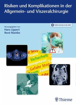 Risiken und Komplikationen in der Allgemein- und Viszeralchirurgie (eBook, ePUB)
