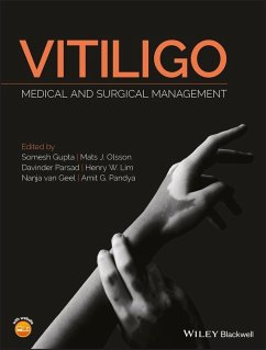 Vitiligo (eBook, PDF)