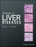 Pathology of Liver Diseases (eBook, ePUB)